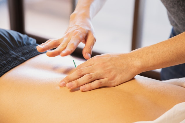 Answers to Your Questions About Acupuncture